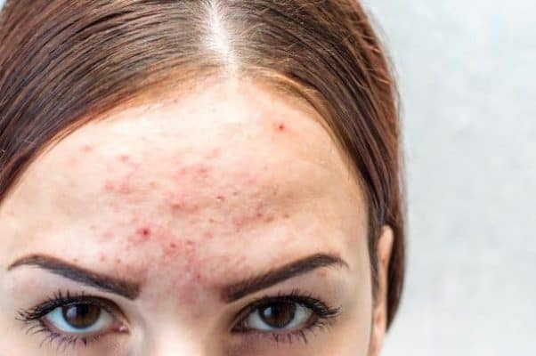 fungal acne appearance