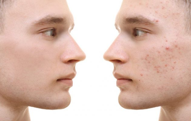 acne scarring cause