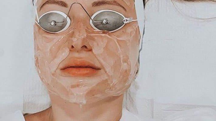 laser treatment acne scars